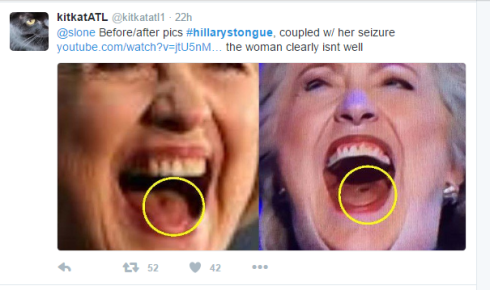 hillary_tongue.png